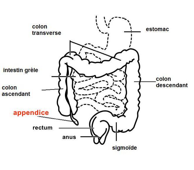 Appendicite - (Image provenant de wikipédia) - SOSinf.org