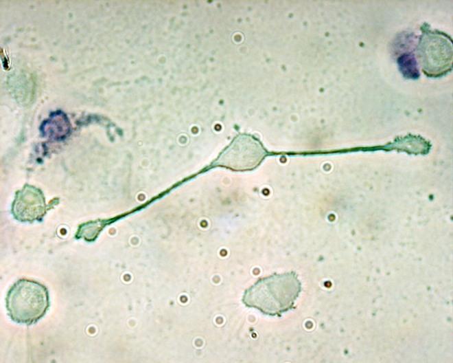 Un macrophage de souris avec deux grands prolongements cytoplasmiques - Lingulidas - Obli - Wikimedia Commons