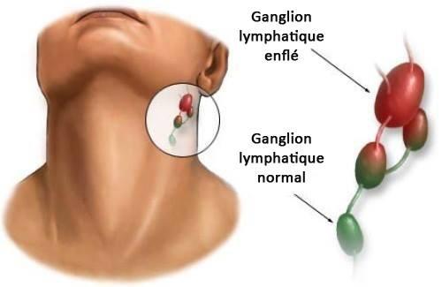 L'inflammation des ganglions lymphatiques : quelle en est la cause ? - Améliore ta santé