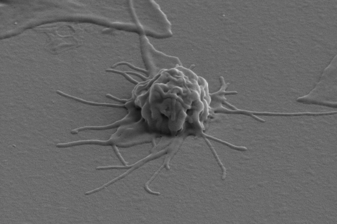 Активированный тромбоцит на стекле с иммобилизованным фибриногеном - Wikimedia Commons (ru)