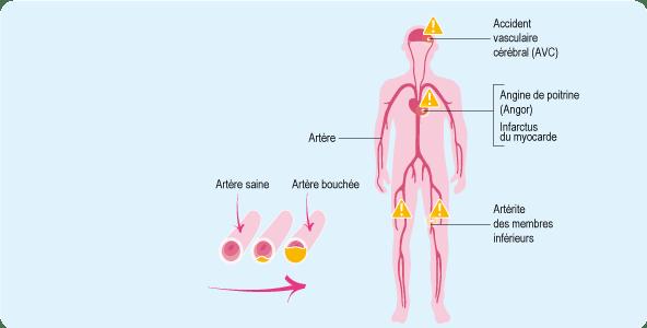Schéma du corps humain représentant les maladies cardiovasculaires - ameli-sante.fr
