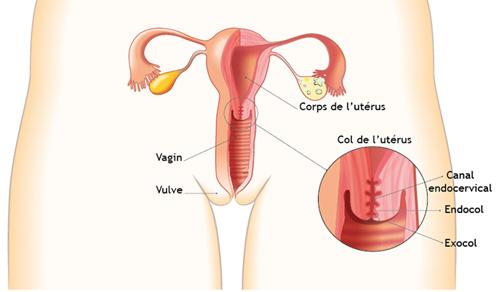Maladies à HPV du col de l'utérus - www.papillomavirus.fr