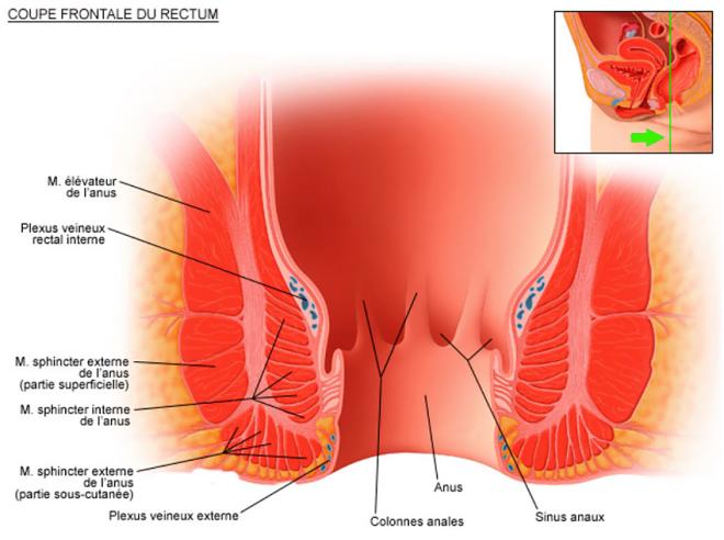 Coupe frontale du rectum - La chirurgie proctologique - chirurgie-beaujolais.fr