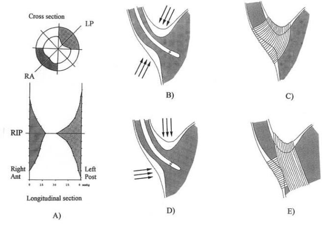 Anatomy of the lower esophageal sphincter - A. Radial manometric pressure profile (top) at the level of the respiratory inversion point (RIP), and longitudinal manometric pressure profile (bottom) of the cardia in the right anterior (RA) and left posterior (LP) direction showing highest pressure at the level of the RIP, which is front-tofront despite the obliquity of the cardia. Figures constructed based on data from Stein et al. [9]. B. Circular and parallel forces exerted over the perfused catheter, explaining the symmetry of highest pressure shown in A. C. Anatomy required to support the concept of the action of circular forces around the oblique cardia. D. Perpendicular forces exerted over the catheter based on the arrangement of the oblique sling fibers and clasp fibers. E. Muscular anatomy - healthonnet.org