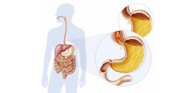 Reflux gastro-œsophagien (RGO) - JACOPIN / BSIP - SCIENCES ET AVENIR