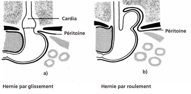 Hernies hiatales - Physiopathologie - campus.cerimes.fr