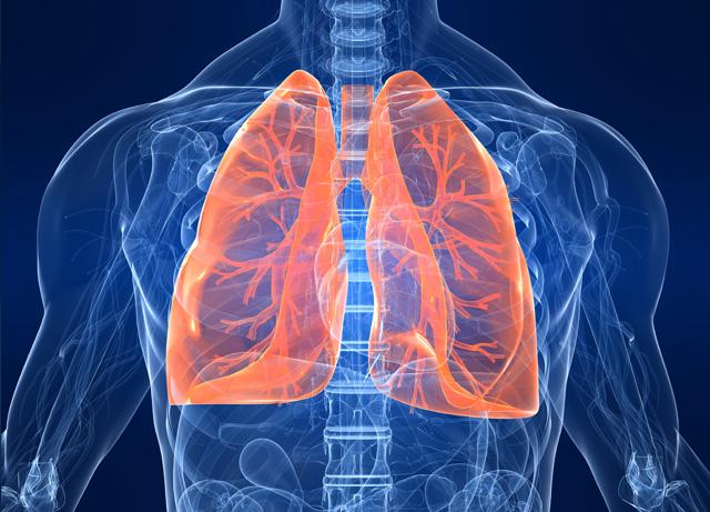 Info santé Cancer du poumon : L'essentiel - prioritesantemutualiste.fr