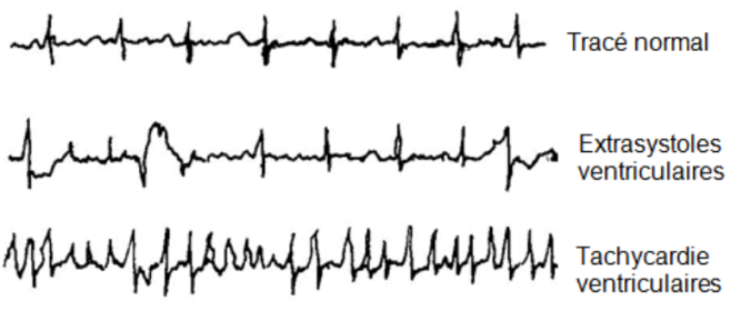 Tachycardie - medelli