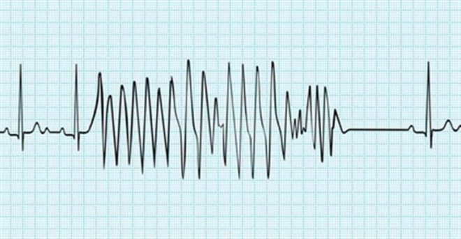 Tachycardie - docteurclic