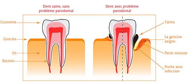 Problème parondontal - dr-tramaloni-daniel.chirurgiens-dentistes.fr