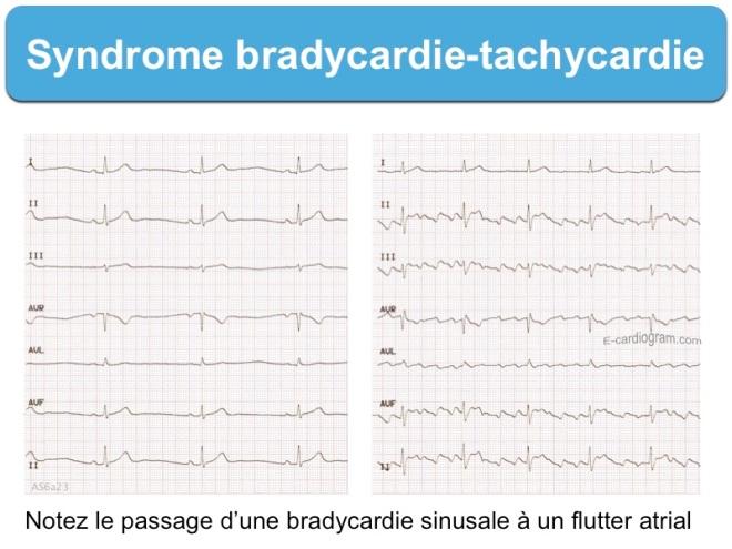 Syndrome bradycardie-tachycardie - Formation à « l'ECG de A à Z » par Pierre Taboulet - e-cardiogram.com