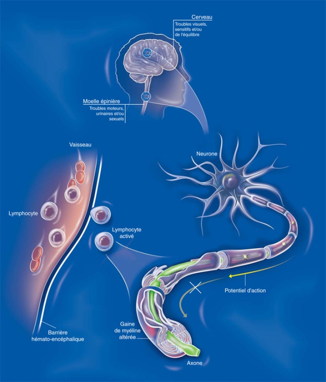 Attaquées par les lymphocytes, les gaines de myéline sont altérées, ce qui perturbe ou empêche la circulation de l'information. La maladie se manifeste par des poussées inflammatoires qui entraîne la démyélinisation - Sclérose en plaques (SEP) - Inserm