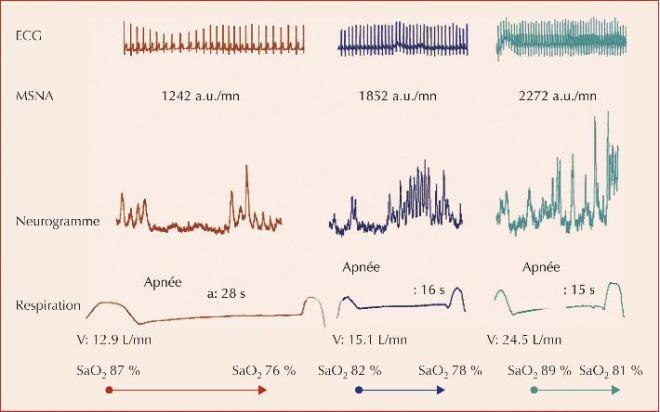 Figure 1 Augmentation de l'activité sympathique lors de l'administration de doses croissantes de dobutamine (rouge = placebo, bleu = 2,5 μg/kg/mn, vert = 7,5 μg/kg/mn) chez le volontaire sain au cours d'apnées volontaires. L'augmentation de l'activité sympathique (neurogramme) a lieu pour une moindre diminution de la saturation en oxygène, suggérant une augmentation de la sensibilité des chémorécepteurs périphériques. D'après Pathak et al. Br J Clin Pharmacology 2006 (in press) - Chémoréflexes : de la physiologie à leur application pratique - MT Cardio - John Libbey EUROTEXT