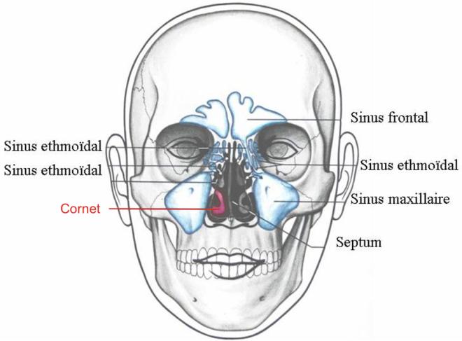 Les sinus sont des cavités remplies d'air creusées dans les os du crâne - Anatomie – Fonctionnement du Nez et des Sinus - orl.nc