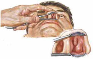 L'air inspiré est chauffé et humidifié par des radiateurs qui se trouvent à la partie externe des fosses nasales, les cornets du nez - Anatomie – Fonctionnement du Nez et des Sinus - orl.nc