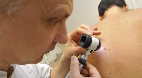 Dermatologue2 - Recherche de melanome, grains de beauté inflammatoires, au cabinet d'un dermatologue liberal - planetecampus.com