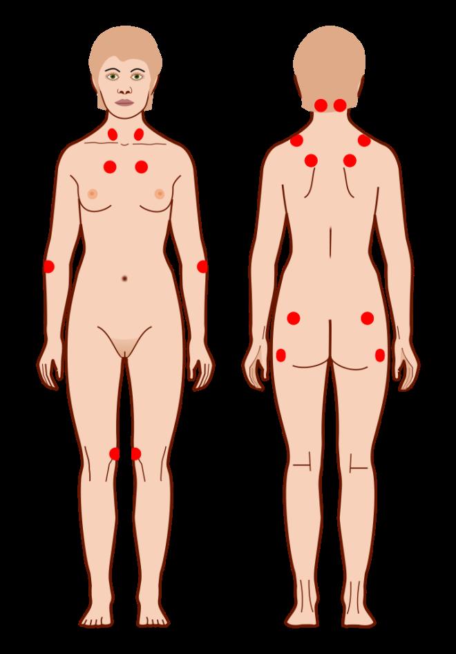 Média dans la catégorie « Fibromyalgia » - WIKIMEDIACOMMONS