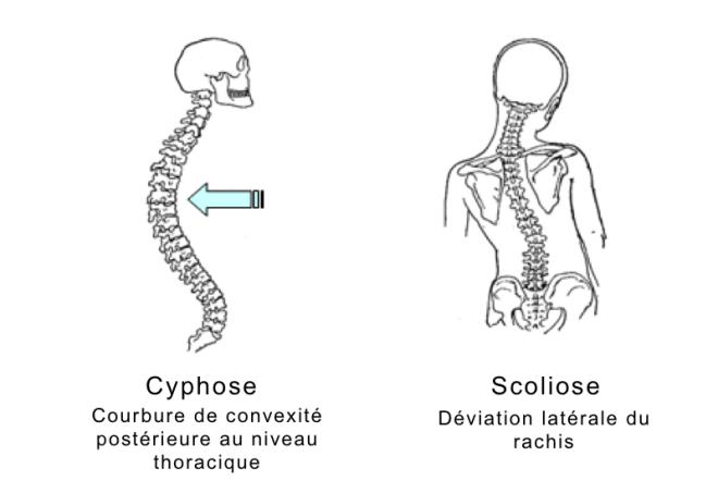 Cyphoscoliose - bio-top.net