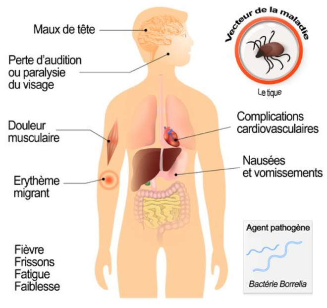 LA MALADIE DE LYME - Symptômes de la maladie de Lyme - Doctissimo Santé