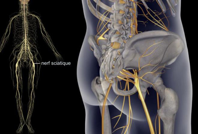 Un guide visuel sur la sciatique - WebMD - http://www.fibromyalgie-entraide.com