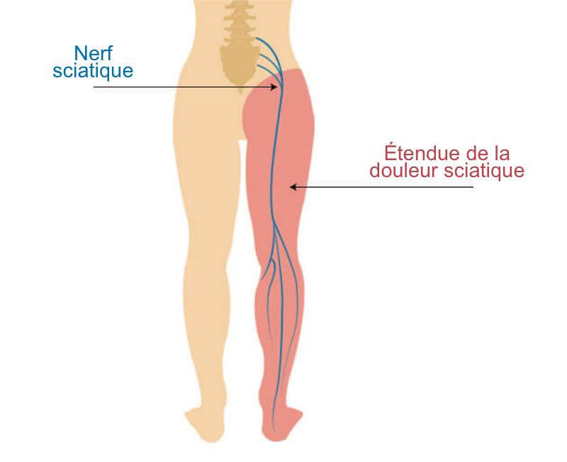 nerf sciatique douleur