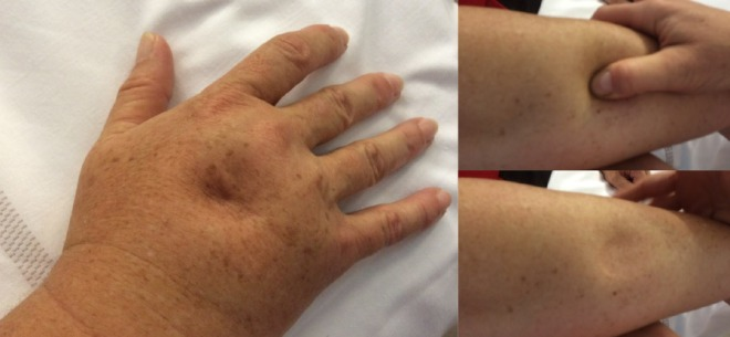 Le lymphœdème - Par le Docteur Marlène Coupé, Médecine vasculaire - Juzo