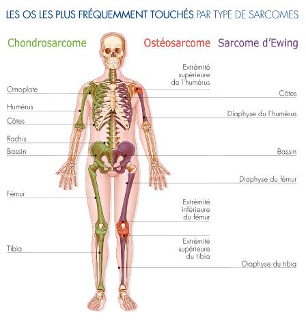 LES OS LES PLUS FRÉQUEMMENT TOUCHÉS PAR TYPE DE SARCOMES - sophiejacopin.com - Les sarcomes osseux - FONDATION ARC POUR LA RECHERCHE SUR LE CANCER