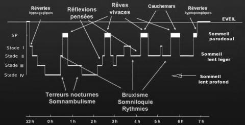 Répartition des parasomnies au cours de la nuit en fonction de l'architecture du sommeil - Parasomnies - Sommeil et médecine générale