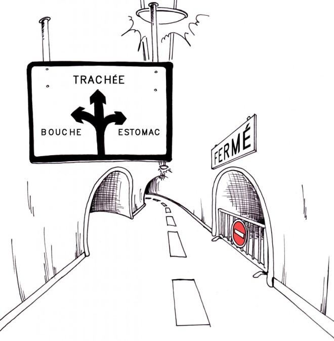 L'atrésie de l'œsophage - unesurtroismille.fr via Google Images