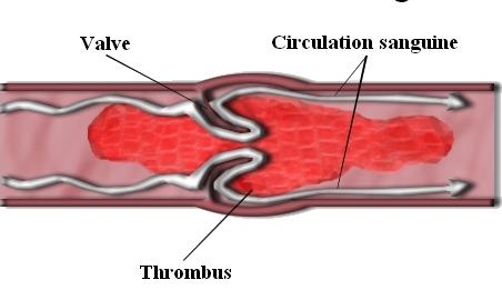 Un caillot sanguin, ici formé sur une valve - Persian Poet Gal - Wikimedia Commons