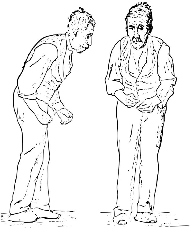 Illustration de l'attitude générale d'un patient atteint de la maladie de Parkinson par Sir Wiliam Richard Gowers - Wikimedia Commons