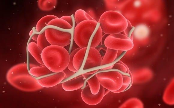 Blood Clot - Google Images