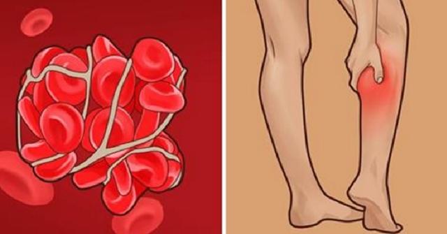 сгусток крови - Google Images