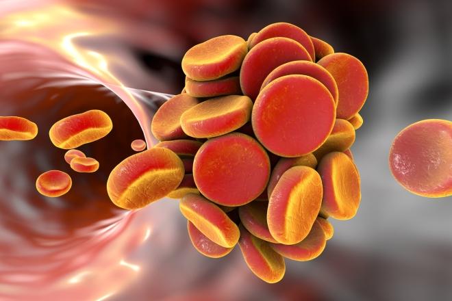 Embole vasculaire - Google Images