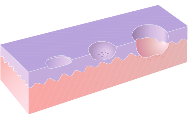 Схематическое изображение эрозии (слева), экскориации (в середине) и язвы (справа) - Madhero88 - Jdcollins13 – Wikimedia Commons