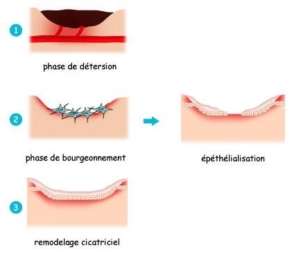 Cicatrisation - Santé sur le Net