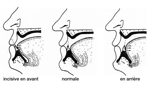 Position antérieure des incisives mandibulaires avec une inclinaison trop importante qui entraîne une position plus antérieure de la langue, une position normale et une position en arrière qui entraîne un recul de la langue - LA LANGUE - LA DEGLUTITION – Les fonctions oro-faciales – la croissance crânio-faciale - S.E.R.E.T.