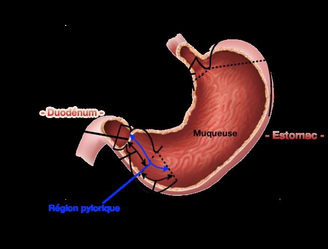 bulbe gastrique anatomie