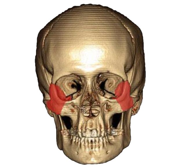 Anatomie des os du crâne - 2005 Neuroradiologie Grenoble - Cédric Mendoza - Grenoble - Radioanatomie.com