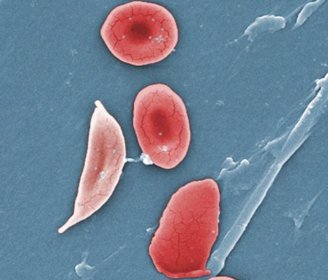 Globule rouge falciforme (pâle, à gauche), typique de la maladie - OpenStax College — Anatomy & Physiology, Connexions Web site - Wikimedia Commons