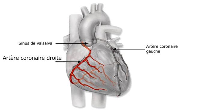 (via Pixelmator) Artères coronaires - Bases de la cardiologie - Docteur Elvire MERVOYER - Campus Sémiologie cardiologique - campus.cerimes.fr