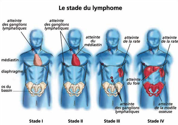 Le stade du lymphome - LE STADE DU LYMPHOME - INSTITUT NATIONAL DU CANCER