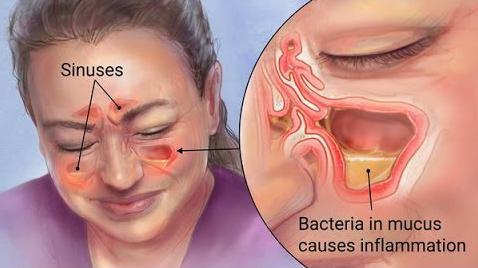 Les sinus dans le corps - Google Images
