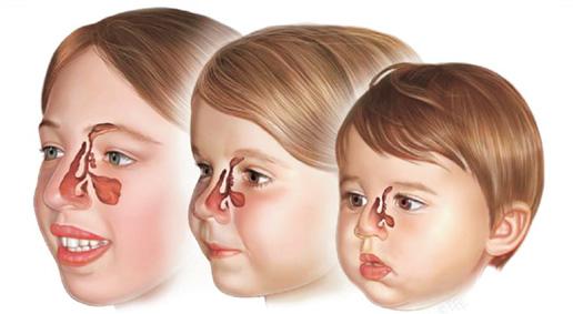 Les Sinusites de l'Enfant - CABINETDE CHIRURGIE ORL ET CERVICO-FACIALE