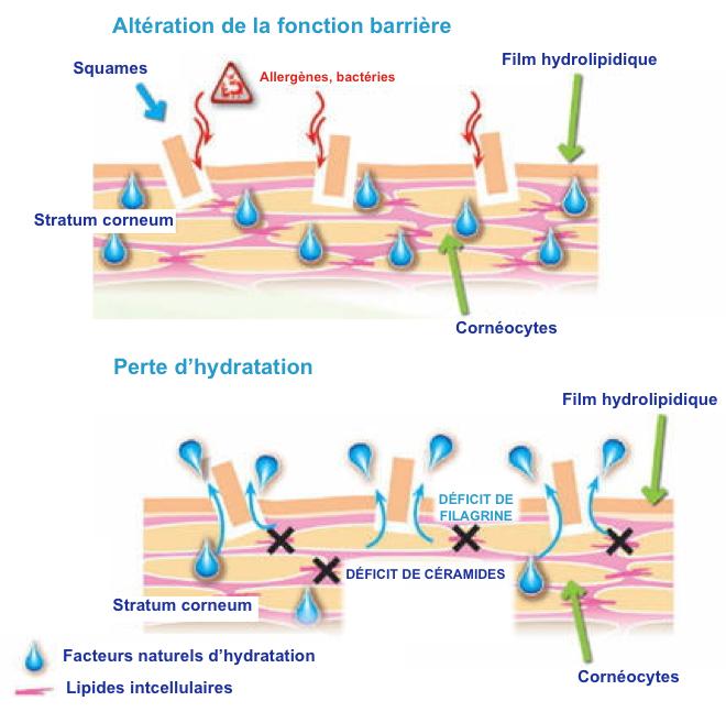 (via Pixelmator) Eczéma et processus d'altération de la peau atopique - Dermatologie - Santé - LE JOURNAL DES FEMMES