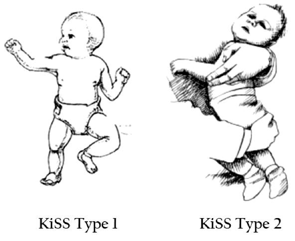 KiSS Type 1, Type 2 - Le S.D.K c'est quoi ? - Family life by mam